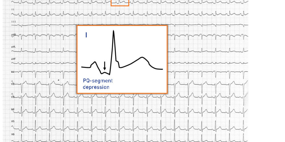 PQ-segment elevation and depression