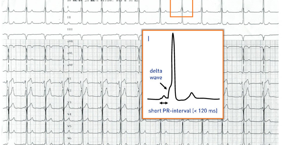 Short PR-interval and ventricular pre-excitation