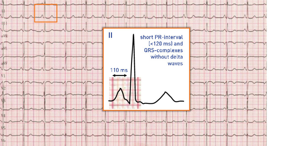 Short PR-interval and normal QRS-complex