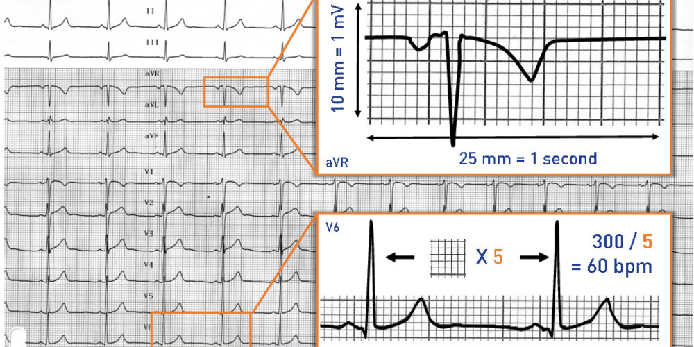 Calibration Paper Speed And Calculation Of Heart Rate Cardiocases