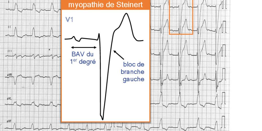 Myopathie de Steinert