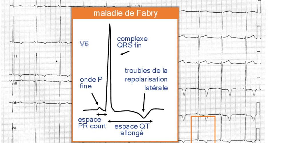 Maladie de Fabry