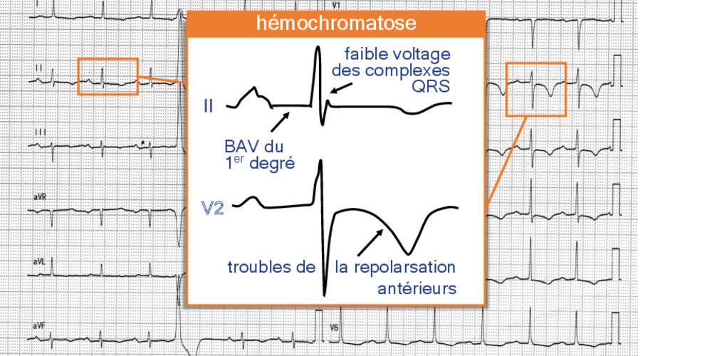 Hémochromatose