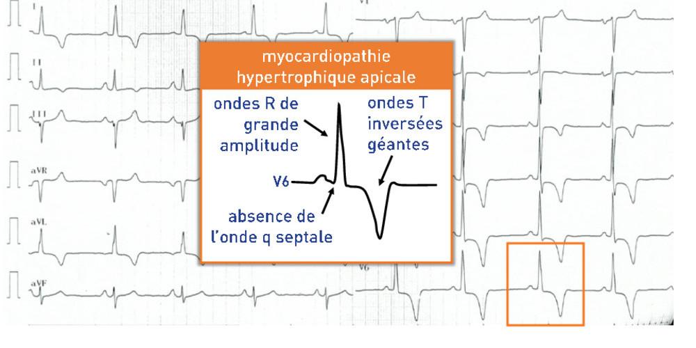 Myocardiopathie hypertrophique apicale