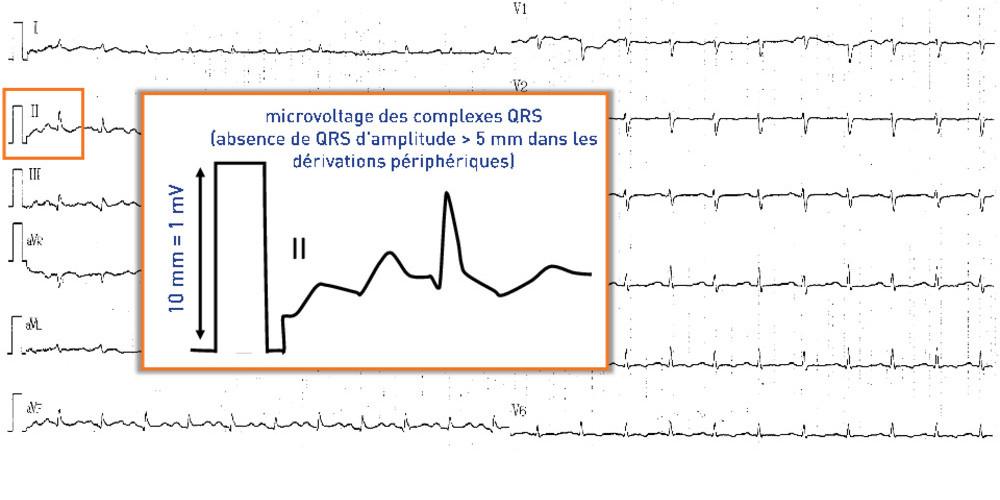 Epanchement péricardique avec diminution des voltages ventriculaires