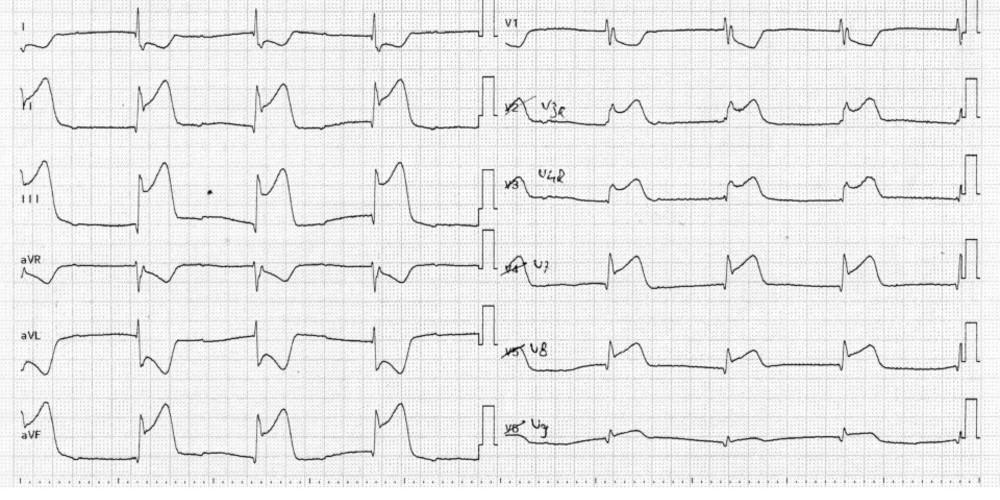 Infarctus inférieur étendu avec extension au ventricule droit et à la paroi postérieure