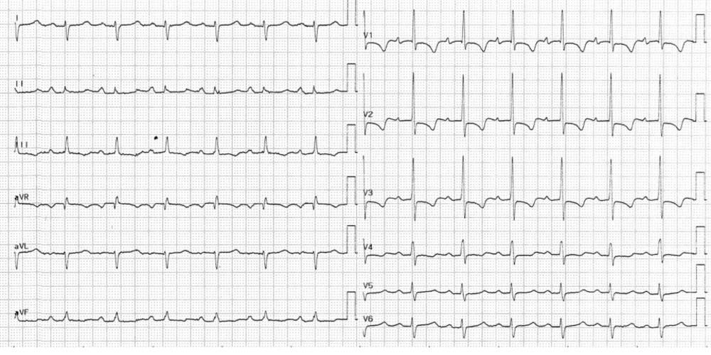 Hypertrophie ventriculaire droite