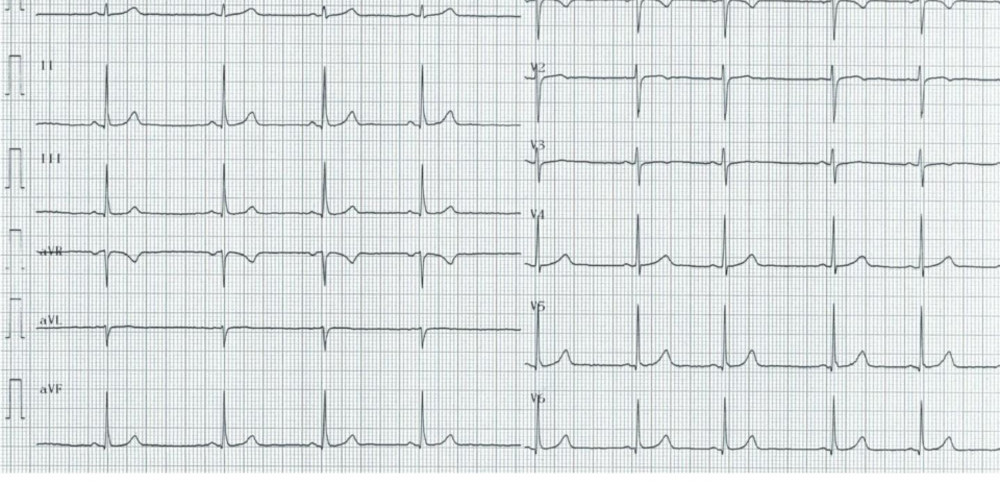 Amplitude des complexes QRS