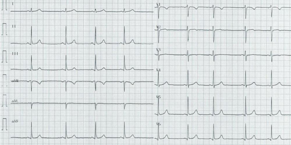 Axe du QRS