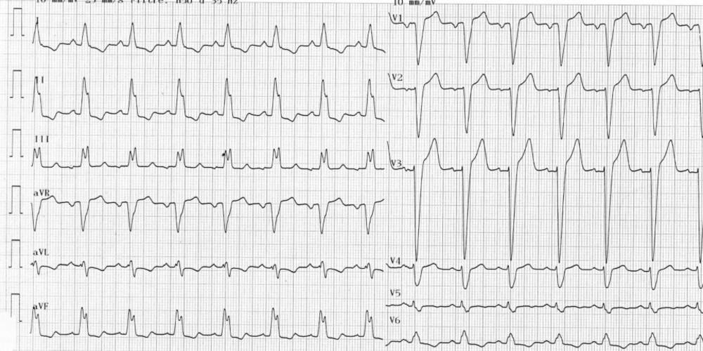 Généralités sur les troubles de conduction intra-ventriculaire