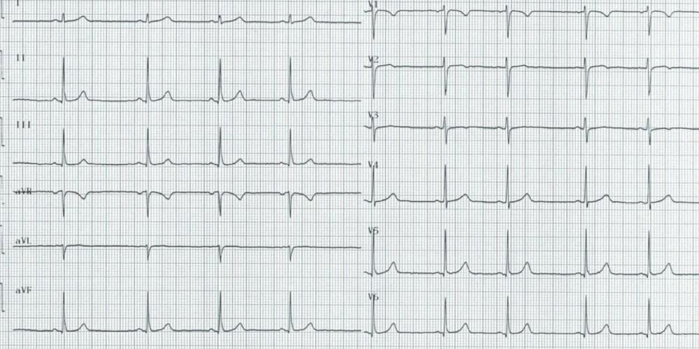 Activation ventriculaire normale et durée du complexe QRS