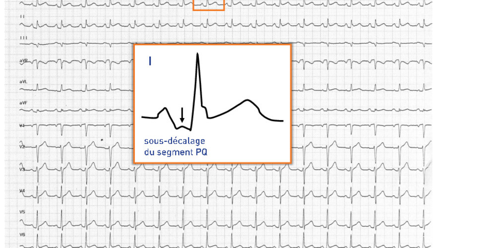 Sous-décalage et sus-décalage du segment PQ