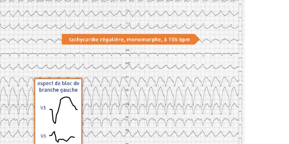 Tachycardie ventriculaire de branche à branche sur myocardiopathie primitive nonischémique