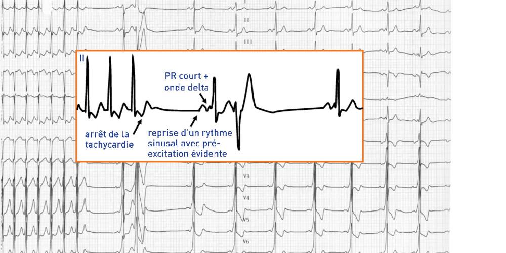 Tachycardie antidromique sur voie accessoire