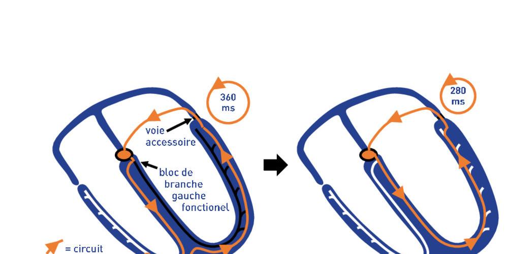 Tachycardie orthodromique et bloc gauche ralentisseur