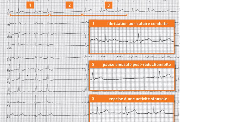 Pause sinusale post-réduction de fibrillation auriculaire