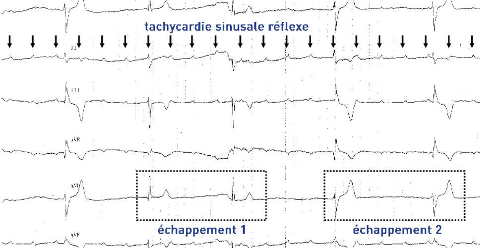 Bloc auriculo-ventriculaire complet et échappement intermittent